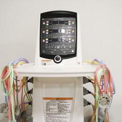 電気刺激装置